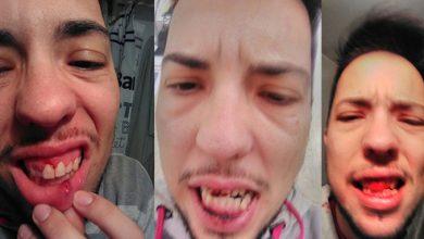 Photo of Una pareja de transexuales brutalmente agredida en Torremolinos