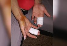 Nuevas agresiones homófobas en La Nogalera de Torremolinos
