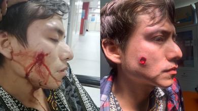 Photo of Nueva agresión homófoba en Perú