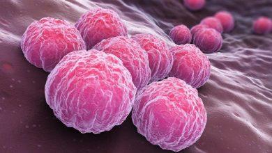 Photo of Las infecciones de transmisión sexual (ITS) bacterianas (III): Clamidiasis y Mycoplasma Genitalium