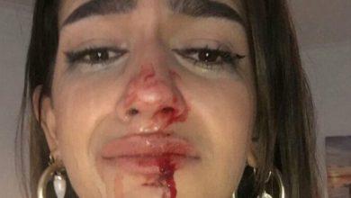 Photo of Agresión tránsfoba a una joven de 19 años en Barcelona